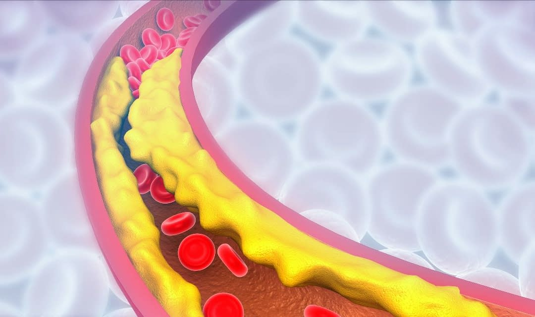 New Options for Treatment of High Cholesterol